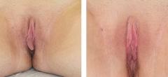 labiaplasty-001.jpg