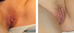labiaplasty-002.jpg