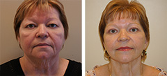 short-scar-facelift-003.jpg