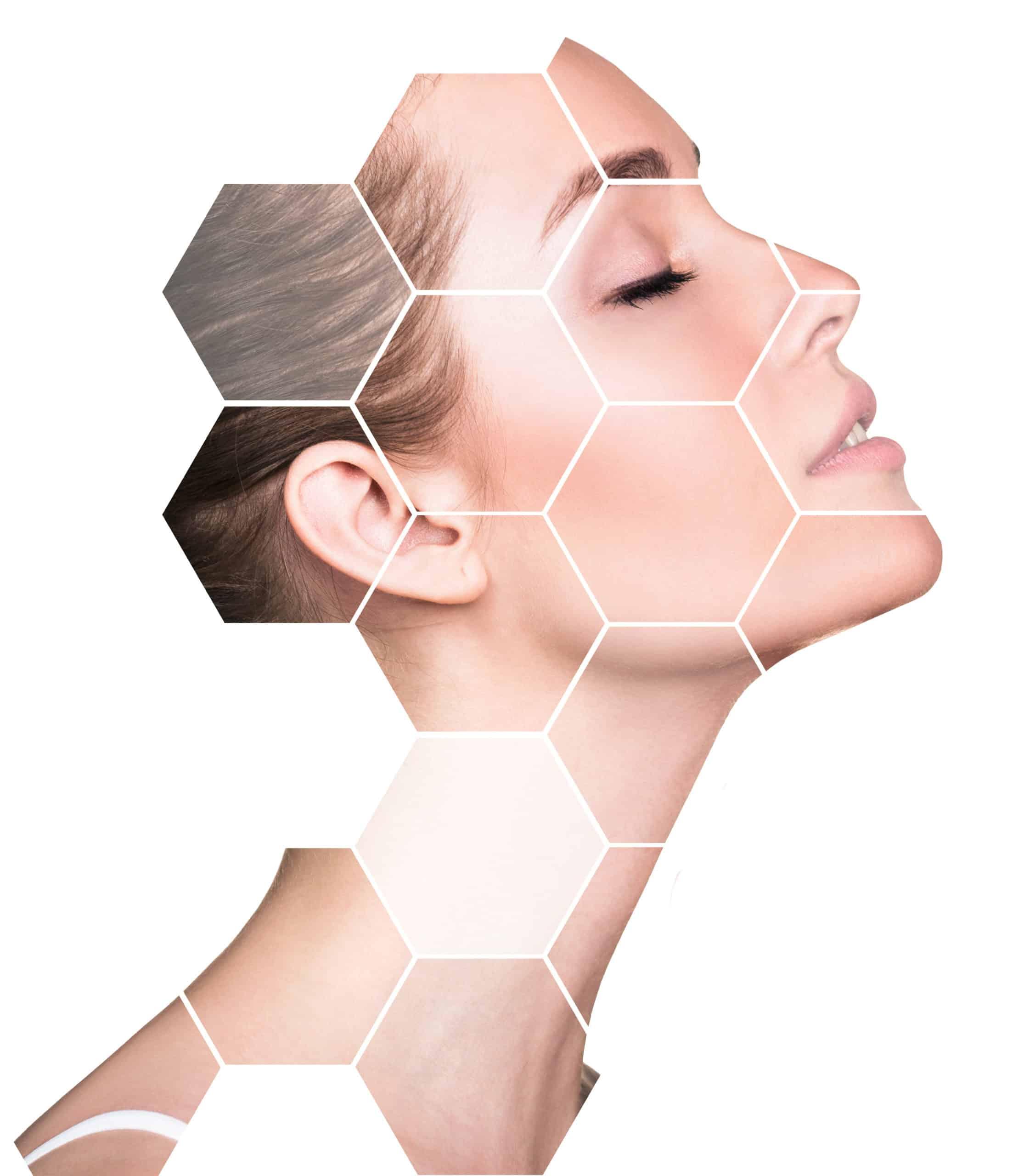 Skin rejuvenation Montreal
